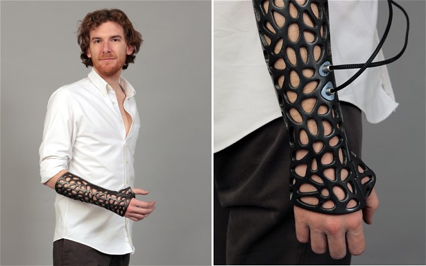 Medical cast using 3D printing could heal broken bones faster