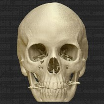 New Development in Stem Cell Research for Skull Repair