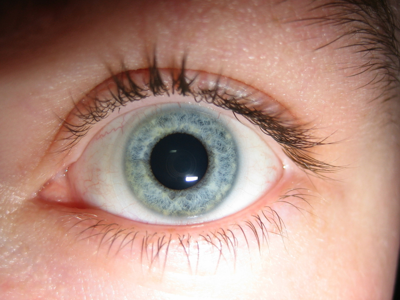 CNN and The BBC Report Successes in Stem Cell Therapy for Sight Disorders