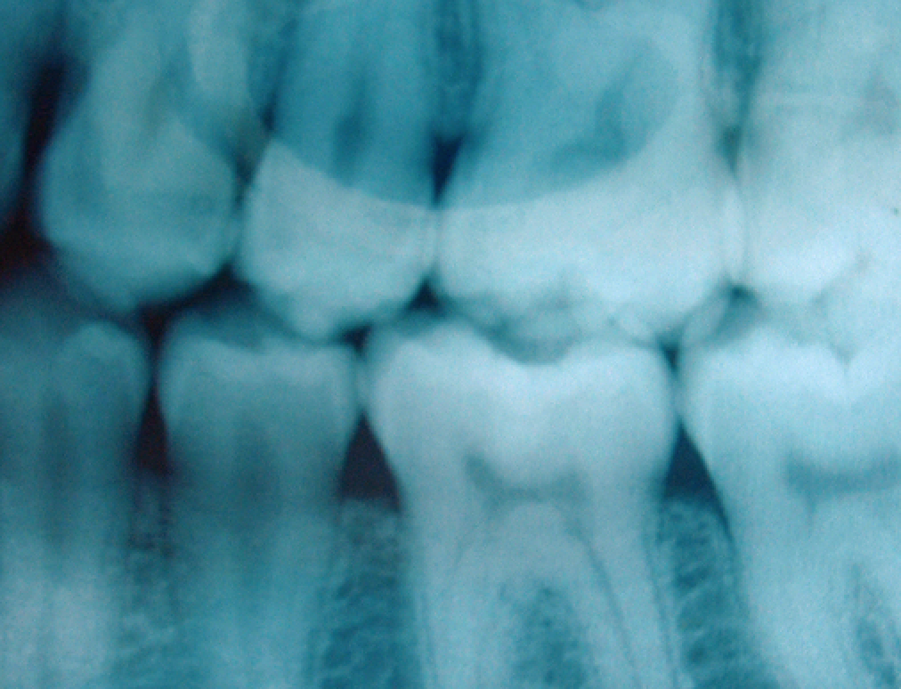 "Should You ""Bank"" Your Teeth? Medics Say ""Yes!"""