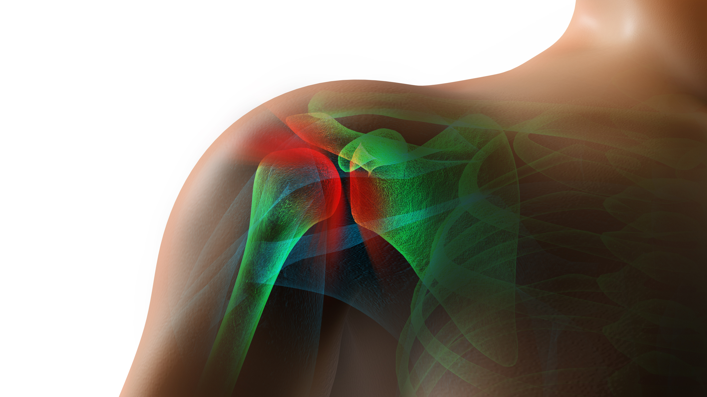 Stem cells used to speed up rotator cuff surgery recovery time