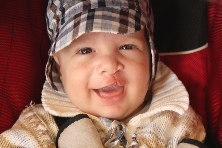 Stem cell-based technique developed for treatment of cleft palate